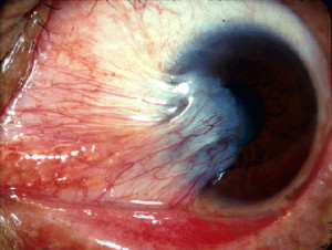 Pterygium_(from_Michigan_Uni_site,_CC-BY)